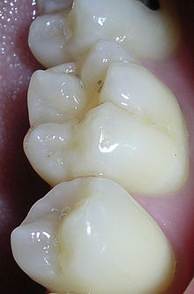 pits-fissures-molar