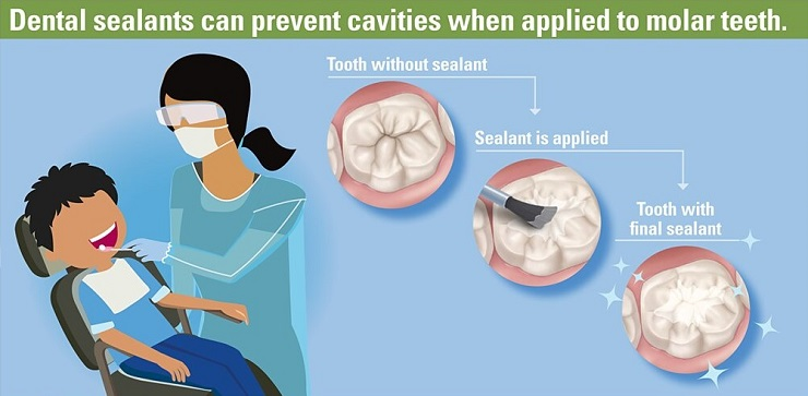 Keep smiling with sealants